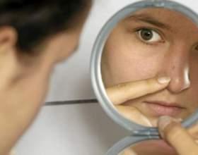 Что делать, если болит кончик носа фото
