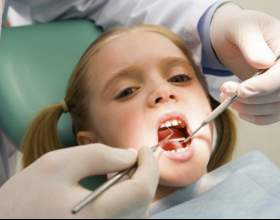 Что такое пластинки для зубов фото