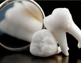 Что такое зуб мудрости фото