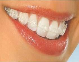 Исправление неправильного прикуса зубов фото