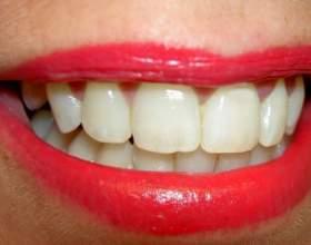 Как исправить неровные зубы фото