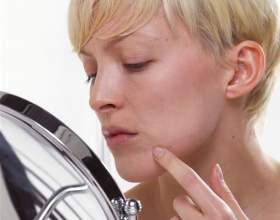 Как избавиться от фурункула на лице фото