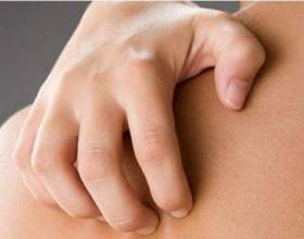 Как лечить аллергию на теле фото