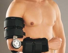 Как лечить вывих локтевого сустава фото