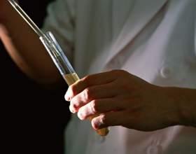 Как нужно сдавать кровь на антитела фото