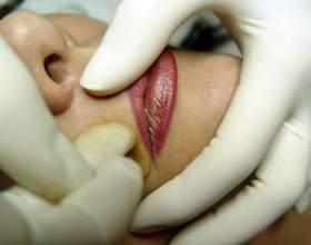 Как обесцветить усы фото