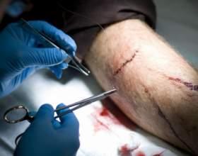 Как обработать резаную рану фото