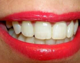 Как отбелить зубы безопасно фото