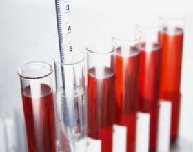 Как подготовиться к забору крови на анализ фото