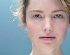 Как подобрать лечебную косметику для жирной кожи фото