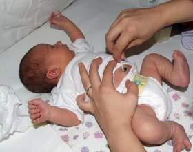 Как правильно обрабатывать пупочную рану новорожденного? фото