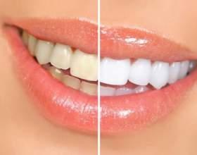 Как снизить образование зубного налета фото
