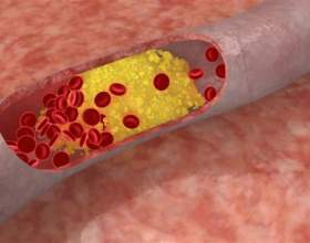 Как снизить повышенный холестерин фото