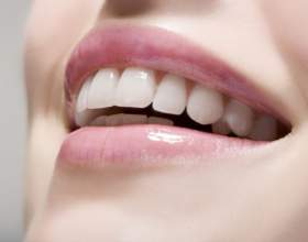 Как снять налет с зубов фото