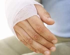 Как снять отек при переломе руки фото