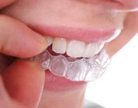 Как ставят пластинку на зубы фото