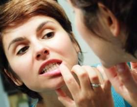 Как устранить припухлость и болезненность десен фото