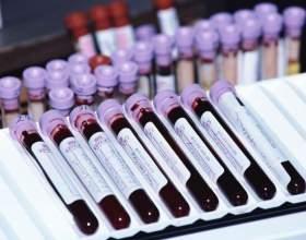 Как узнать уровень железа в крови фото