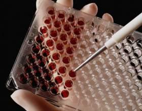 Как вычислить группу крови фото