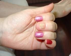 Как выглядит грибок ногтей рук фото