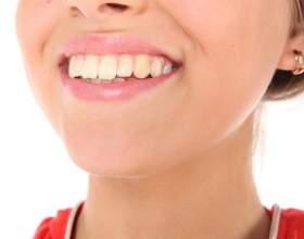 Как выглядит и зачем нужна пластинка для зубов фото