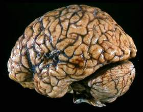 Как выглядит мозг человека фото