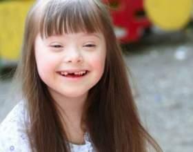 Как выглядит ребенок с синдромом дауна фото