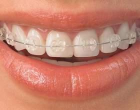 Как выправить зубы фото