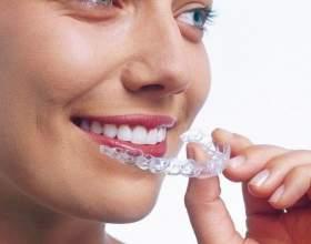 Как выпрямить передние зубы фото