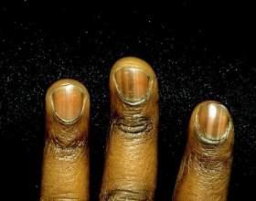 Почему чернеют ногти фото