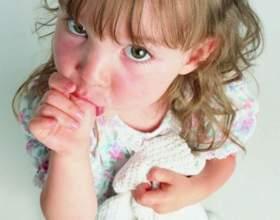 Почему у ребенка белые пятна на ногтях фото