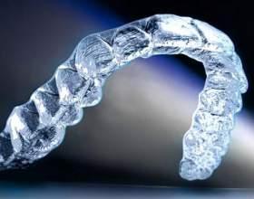 Прозрачные каппы для выравнивания зубов фото
