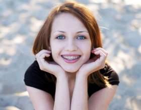 Сколько стоят скобы для выравнивания зубов фото