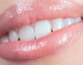 Как избавиться от черного налета на зубах фото