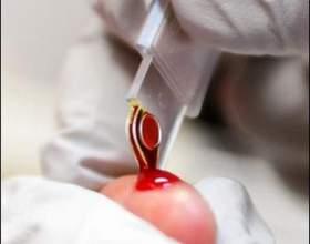 Как нужно сдавать кровь фото