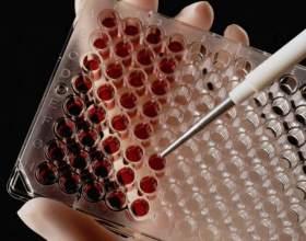 Как сдать кровь на гормоны фото