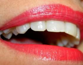 Как удалить зубной налет фото
