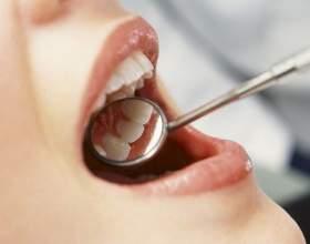 Почему болит зуб после удаления нерва фото