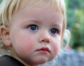 Свищ на десне у ребенка: что делать фото