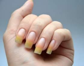 Желтые ногти как признак серьезных нарушений в организме фото